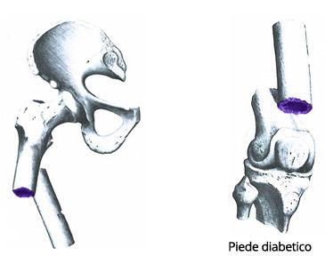 Che vè utile dopo intervento chirurgico per protesi articolare